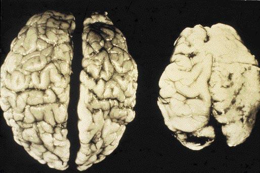 alcoholic brain damage - get domain pictures - getdomainvids.com